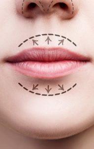 lip enhancement lip fillers