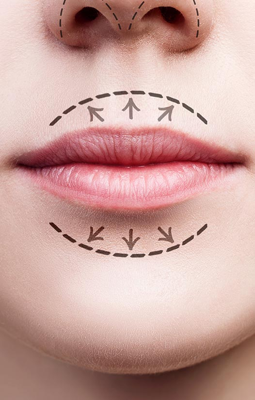 10 Causes of Chapped Lips, Plus How to Get Rid of Chapped Lips