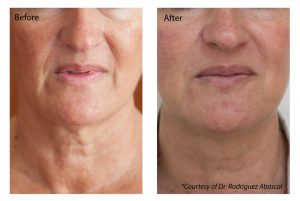 Profhilo® Super Skin Booster before and after