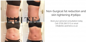 3D Lipo to Reduce Fat this January