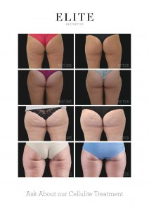 Tackle All 5 Causes Of Cellulite With BTL Unison