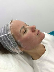 Micro Needling during a treatment