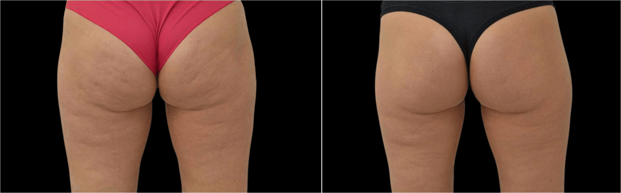 Introducing our NEW treatment for CELLULITE – the BTL Unison