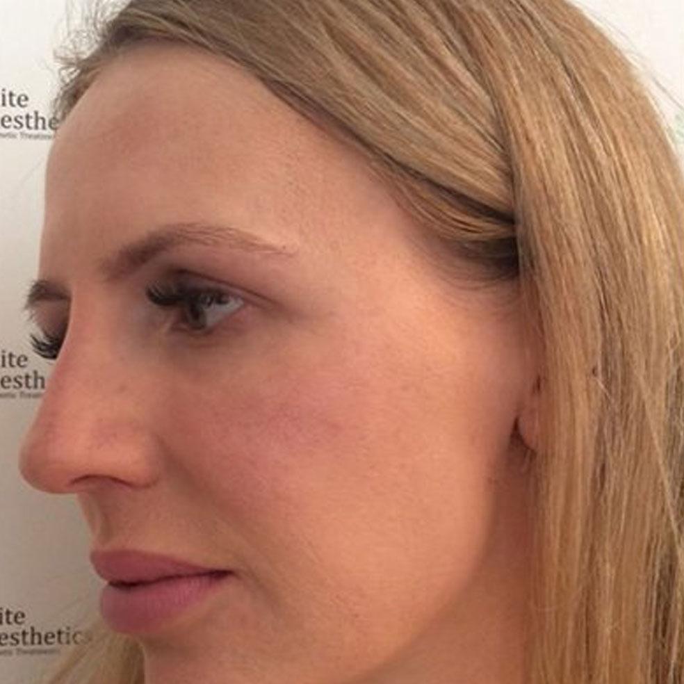 Dermal Fillers Kent | Best Dermal Fillers Clinic in Kent