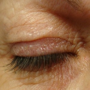 plasma eye lift before and after