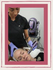 Acne Treatment Kent