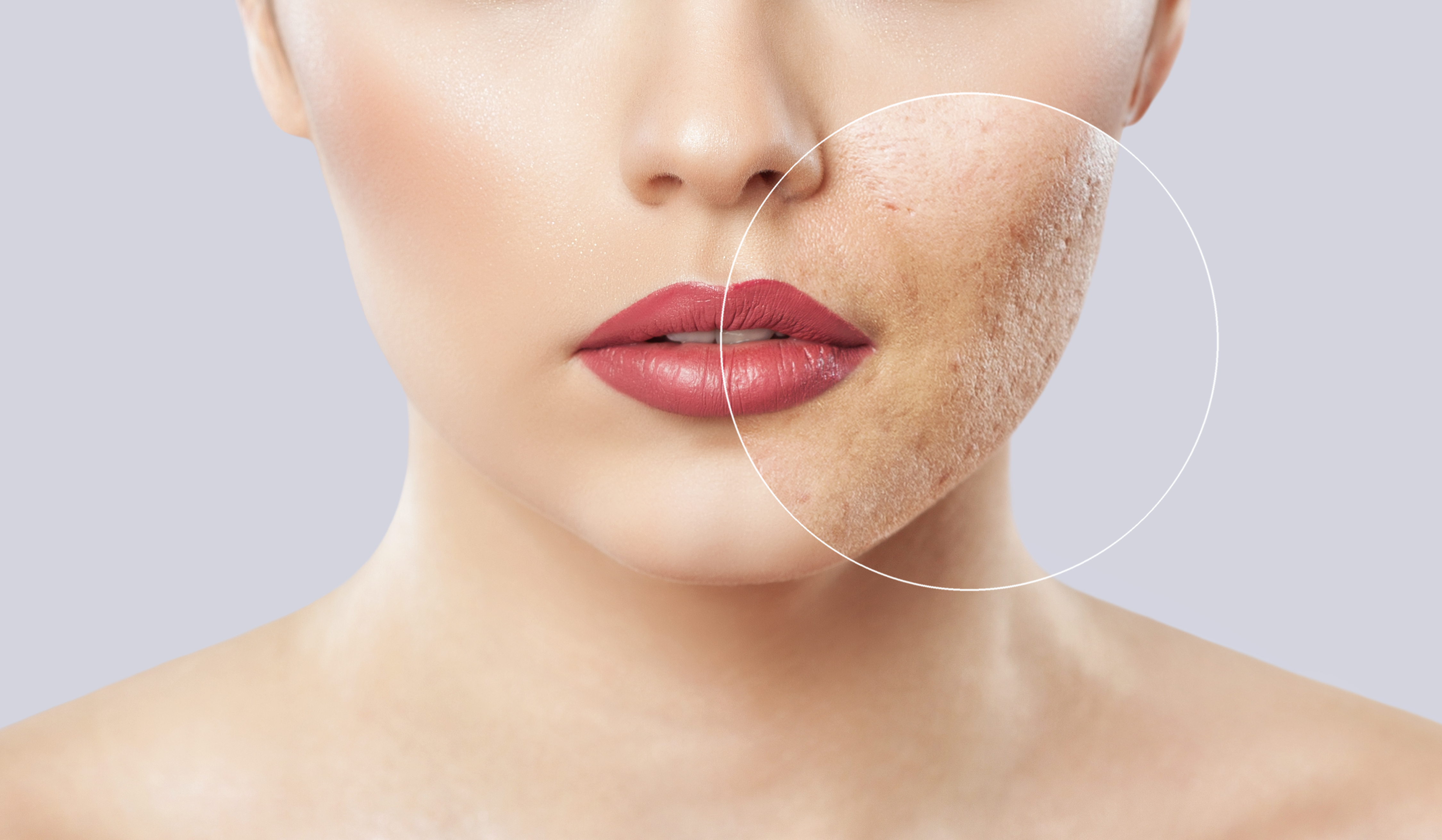 Lose Your Acne Scars For Good With Our Skin Treatments