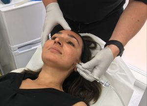 Dr Shirin's Hydrafacial Treatment