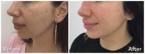 Hydrafacial Trreatment for Pigmentation