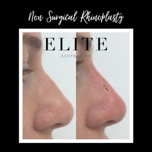 Rhinoplasty-Before-and-After