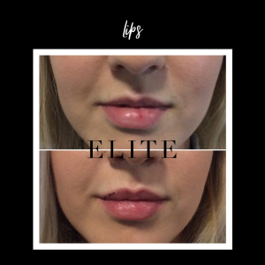 lip fillers before and after pics