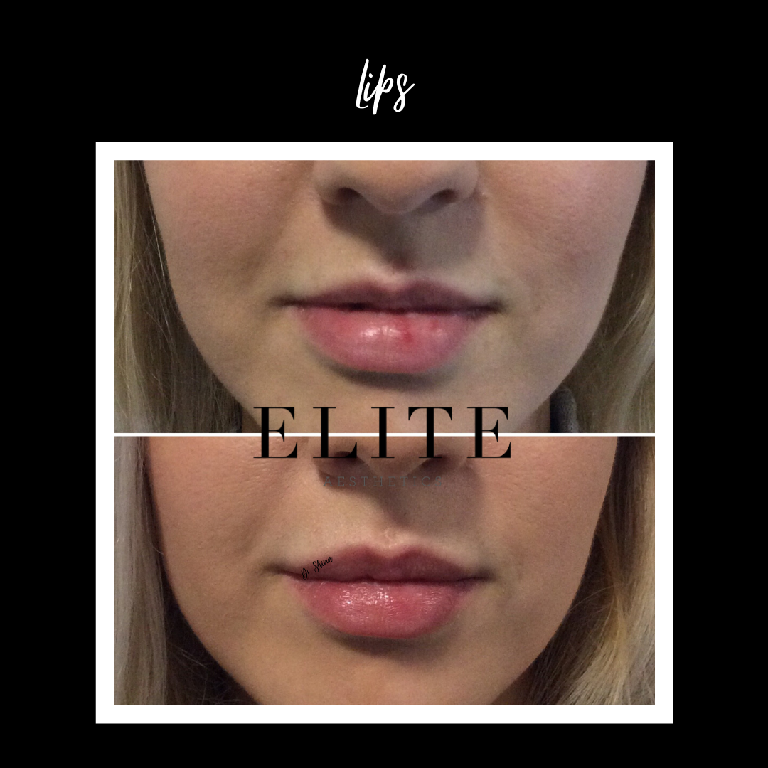 Fillers for Lips Cost