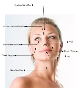 Thread Lift for Face