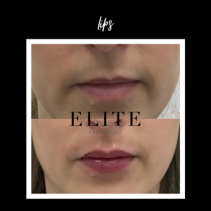 Fillers for the lip before & after