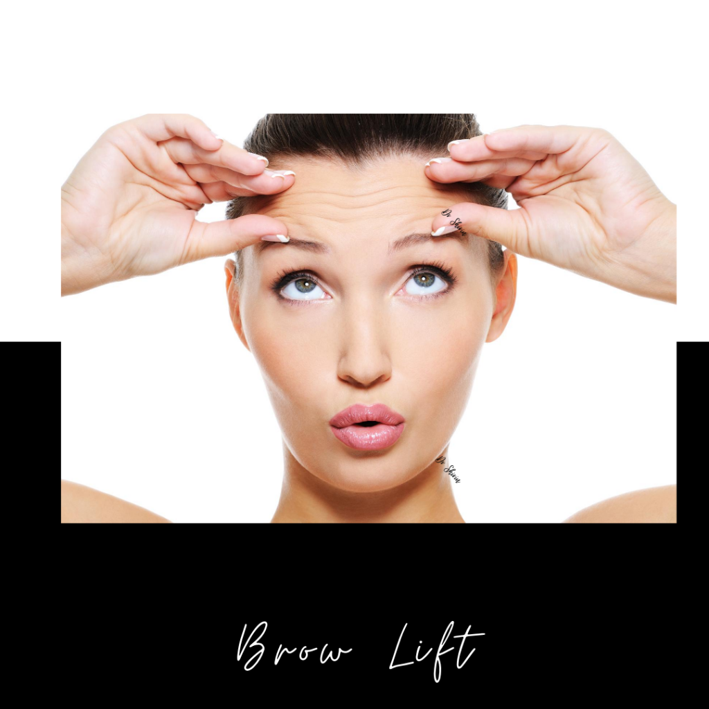 Brow Lift - Before and After Pictures, Info & Prices