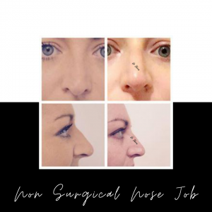 Non Surgical Nose Job vs Surgical Rhinoplasty