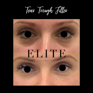 tear trough fillers before & after