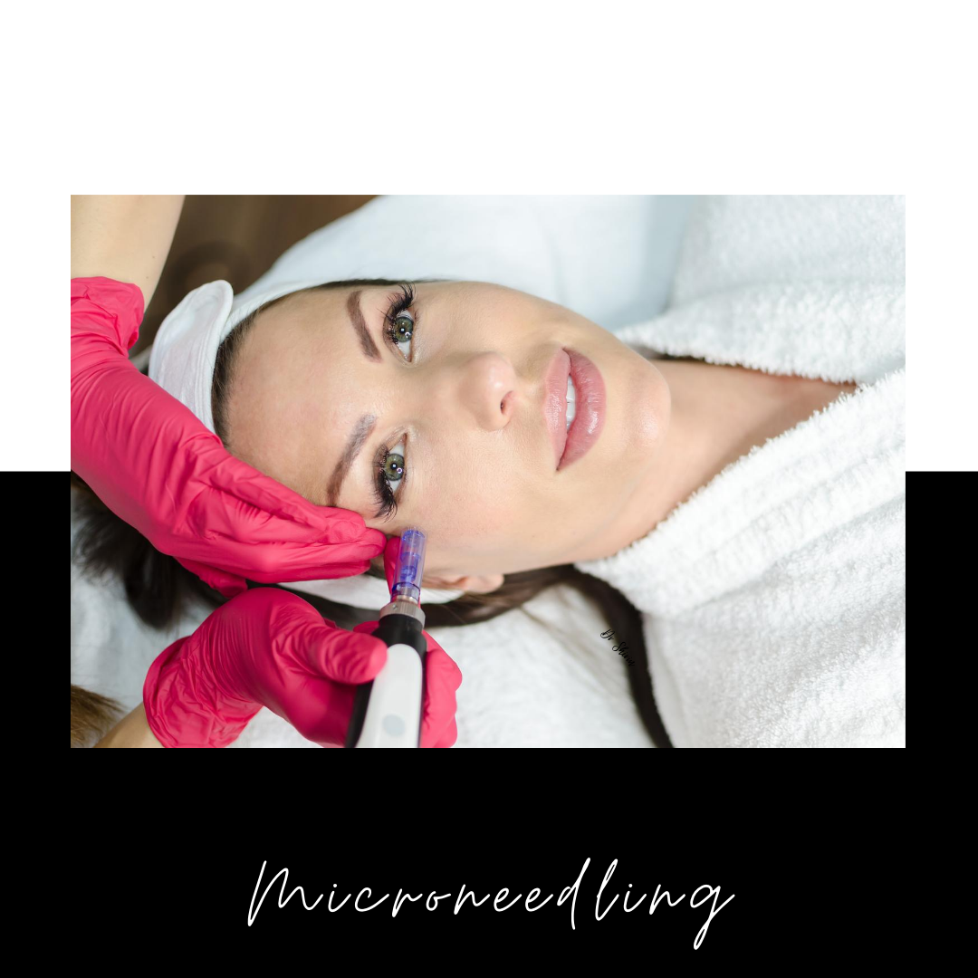 Microneedling Before and After: Everything You Need To Know