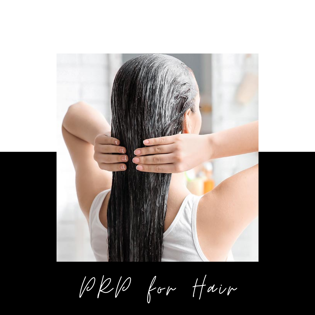 PRP for Hair Treatment- The Secret To Achieving A Good Result, Plus Everything You Need To Know The Vampire PRP Hair Treatment