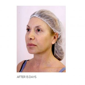 Thread Lift Woman After 15 days