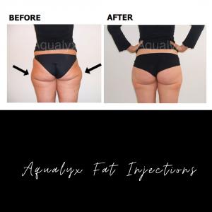 Aqualyx Fat Removal