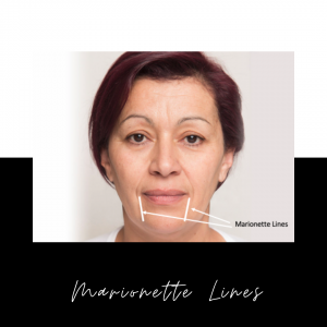 Marionette Lines: What Are They And How To Get Rid Of Them Effectively