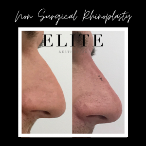 Non Surgical Nose Job Before and Afer