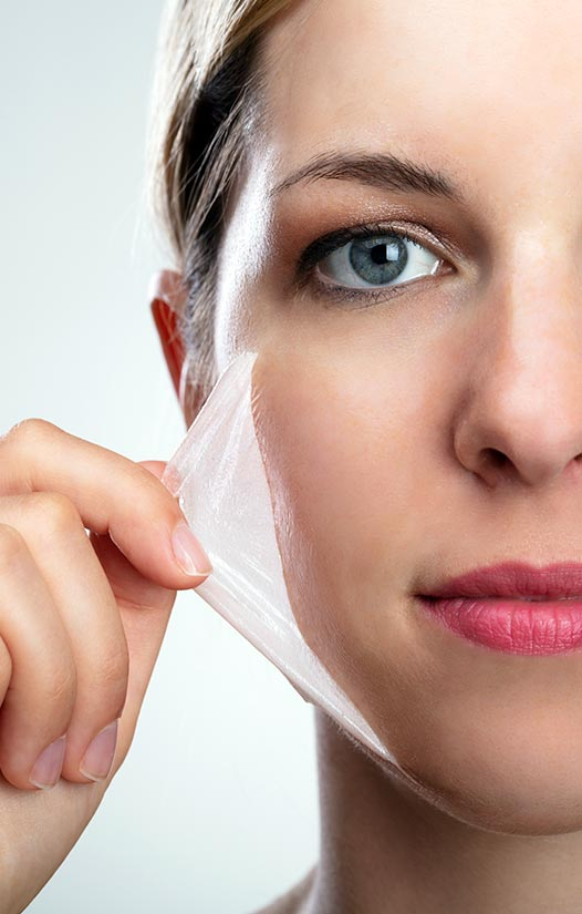 The Perfect Peel – Everything You Need To Know About This Amazing Skin Treatment