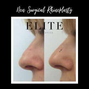 non surgical nose job before and after men