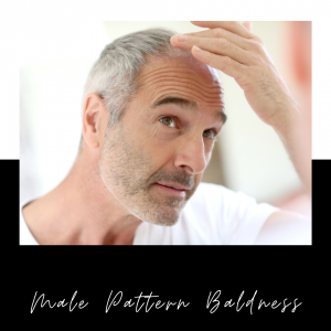 Male Pattern Baldness – Is There A Non-Surgical Solution?