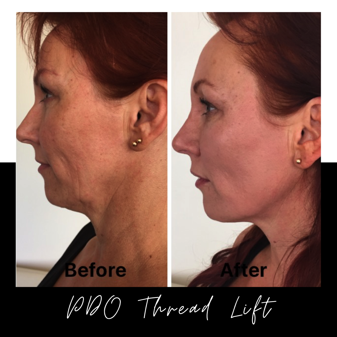 PDO Thread Lift – 5 Things It Can Do For You & Your Skin