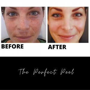 The Perfect Peel Before and After