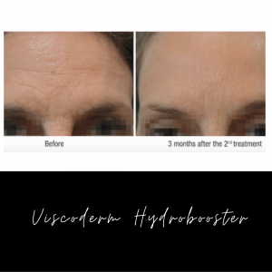 Viscoderm Hydrobooster Before and After
