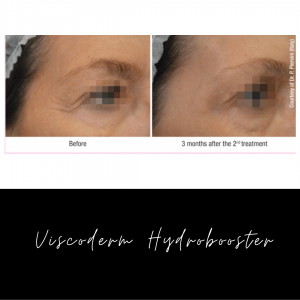 Viscoderm Hydrobooster Before and After Eyes