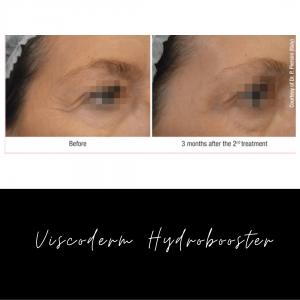 Viscoderm Hydrobooster