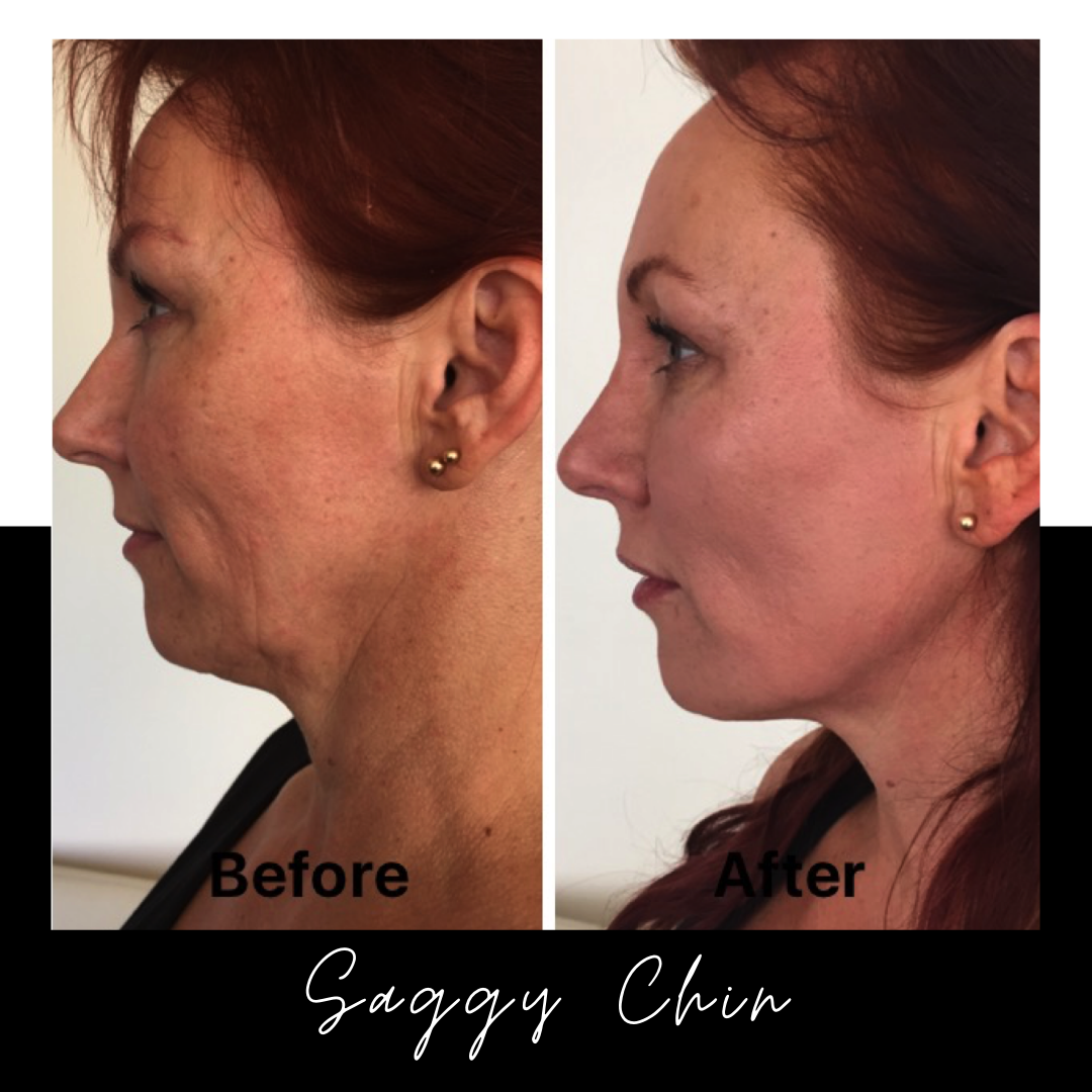 Saggy Neck Surgery – Is There Another Solution?