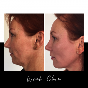 Weak Chin? See Immediate Results – Without Surgery!