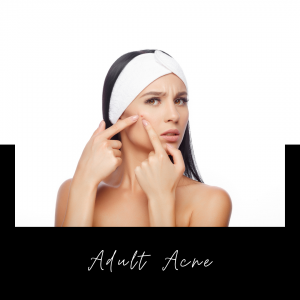 Acne Types – And Treatments That Get Results!