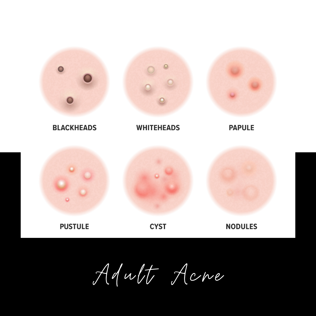 Adult Acne – Everything You Need To Know