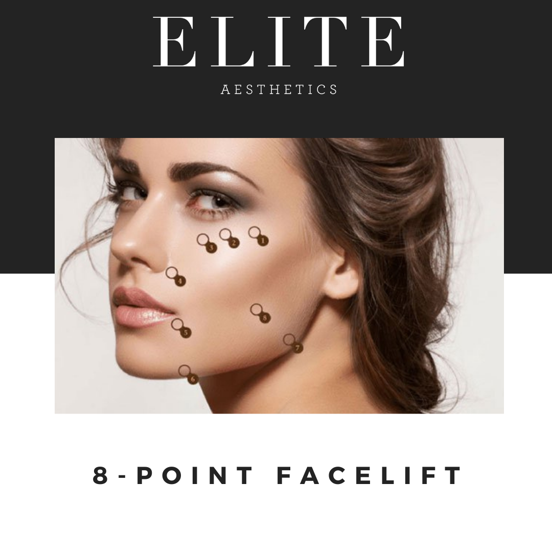 The 8 Point Facelift: Everything You Need To know