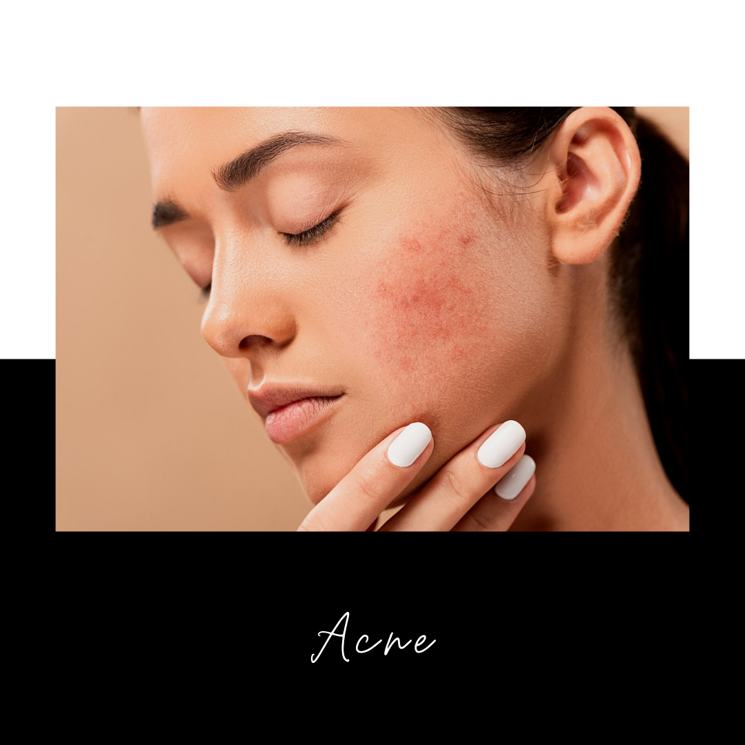 Acne Causes – 5 Things You Didn't Know Are Causing Your Breakouts