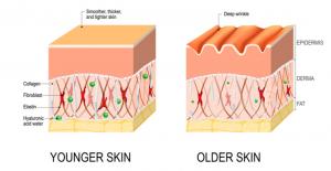 Vampire facial Collagen