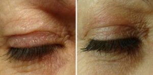 Plexr before and eye bags